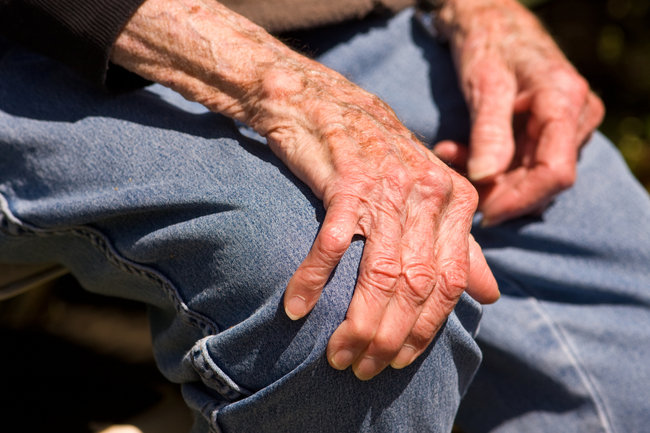 parkinson-sintomas-tercera-edad