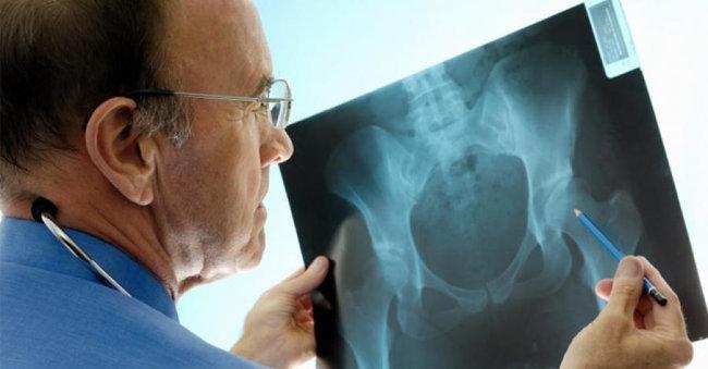 fracturas-cadera-personas-edad-avanzada